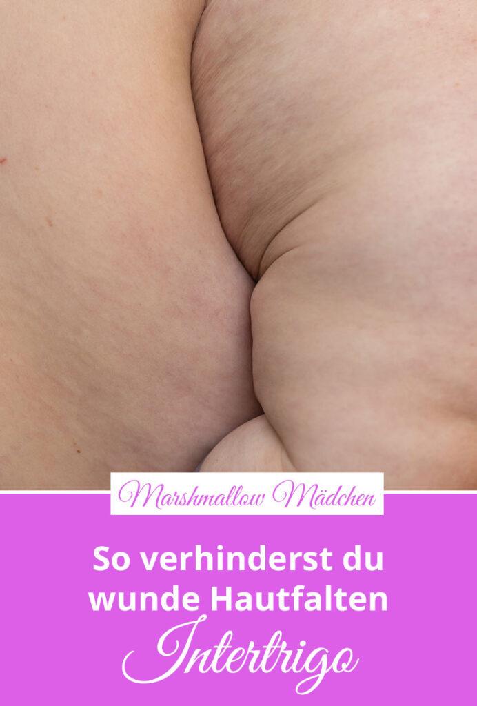 Vor allem dicke Menschen leiden unter wunden Hautfalten, etwa wenn sich eine Bauchfalte entzündet. Aber auch Frauen mit großen Brüsten kennen das schmerzhafte Wundreiben in der Brustfalte. Doch gegen wunde Hautfalten kannst du etwas tun. Marshmallow Mädchen stellt dir einfache Mittel vor, mit denen du wunde Hautfalten verhindern und behandeln kannst.